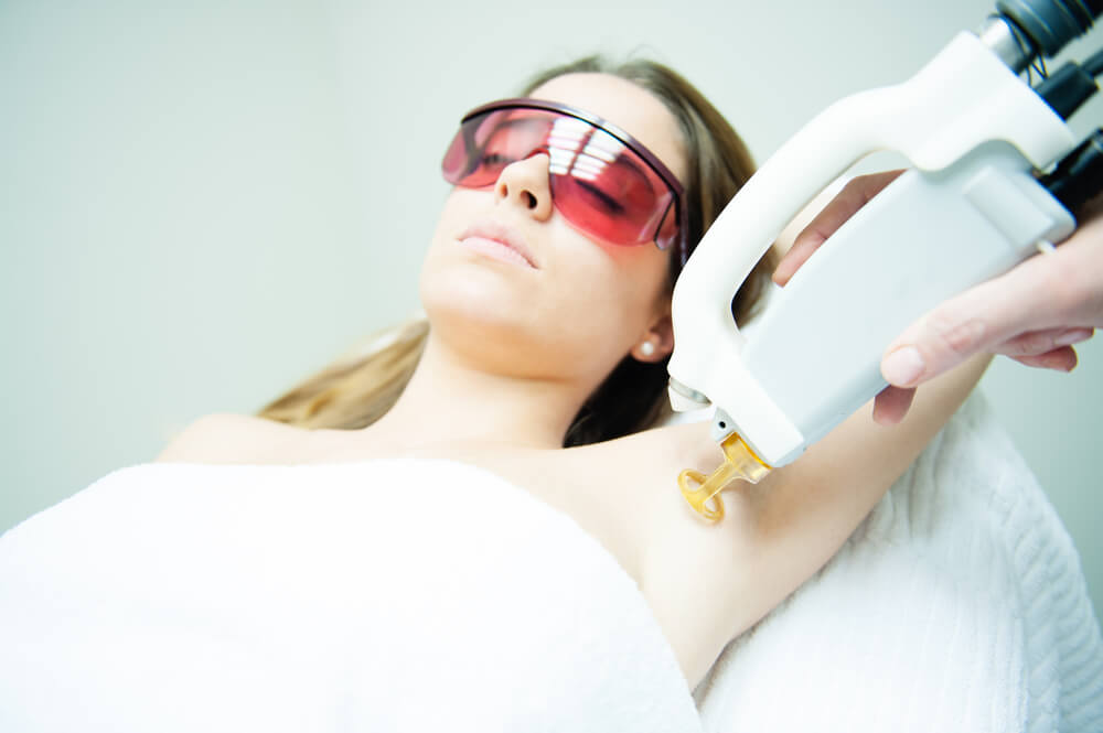 lpi laser hair removal melbourne