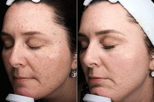 Here is a before and after photos following just <strong>ONE</strong> Pico Genesis treatment.